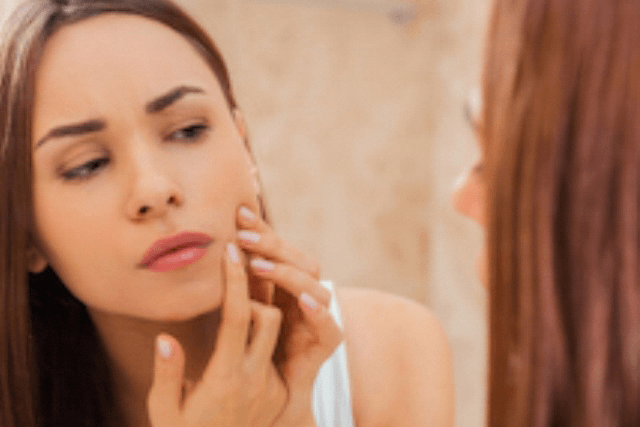 How to Prevent Acne with a Proper Skin Care Routine